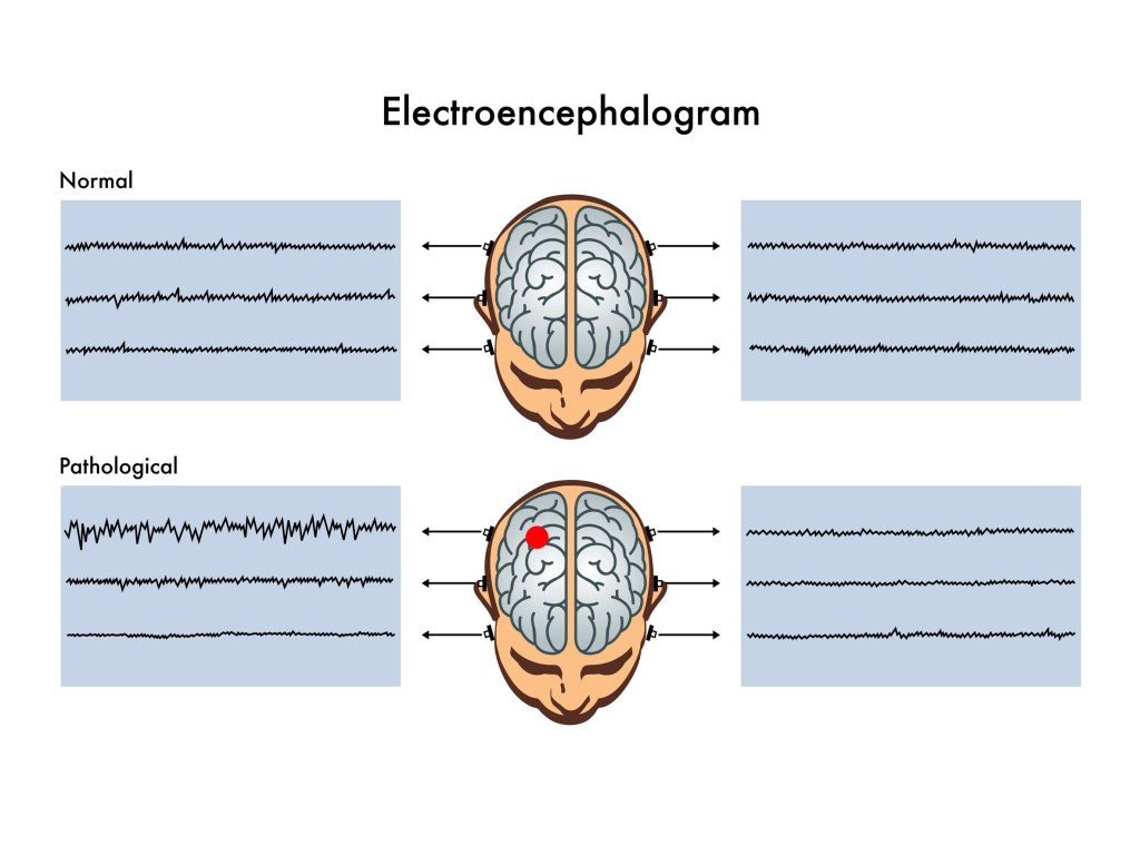 electroencephalogram copy